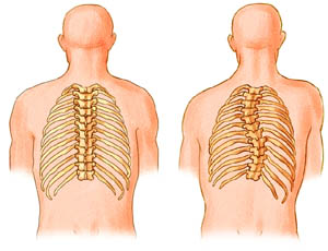 Anatomy drawing of Adult Idiopathic Scoliosis